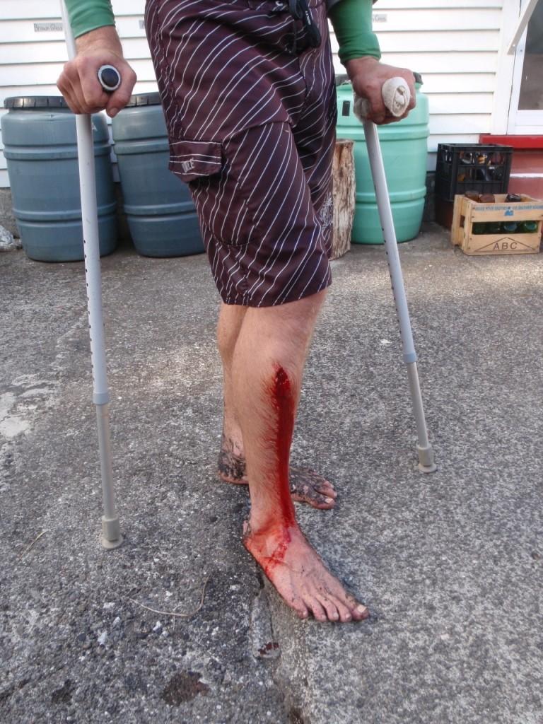 Ashs leg wound